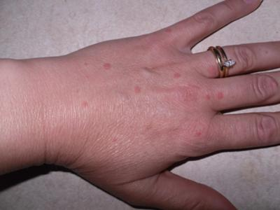 Skin Rash Health Question